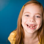 Redhead girl smiles and shows off her missing teeth after a baby tooth extraction at Tots to Teens in San Antonio, TX