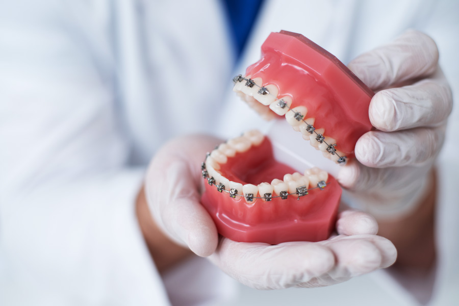 A orthodontist's gloved hands hold a mouth model with braces in San Antonio, TX